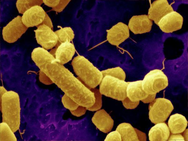 Lactobacillus Plantarum: an image of a probiotic bacterium